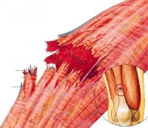 distención-muscular